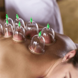 cuppingtheraphy